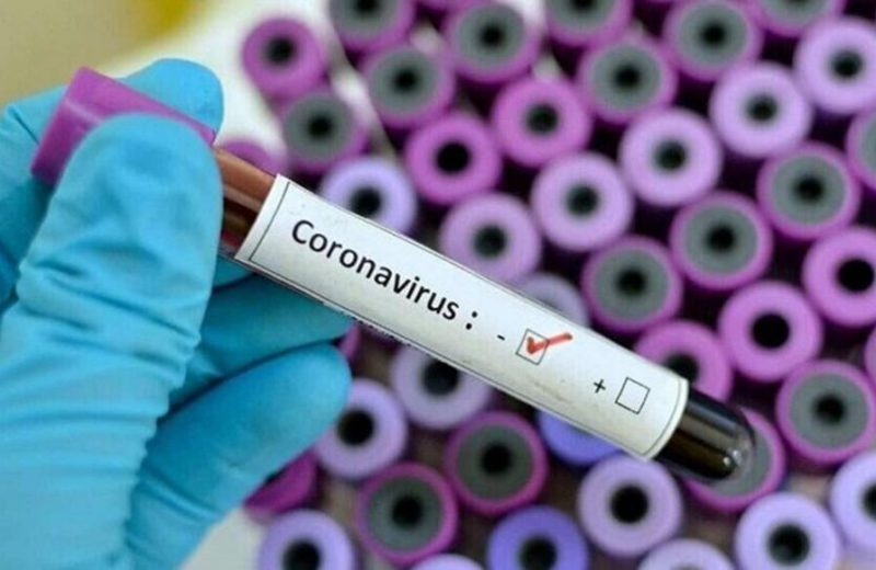 Two more patients have died from coronavirus infection in RS